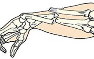 Правила оказания первой помощи при открытых переломах