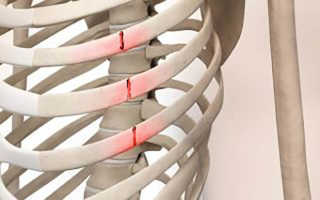 Как распознать ушиб и перелом ребра