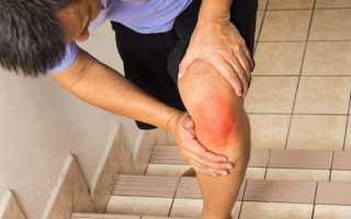 Трещина в колене