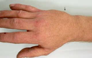 Перелом пястной кости кисти
