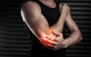 Чрезмыщелковый перелом плечевой кости