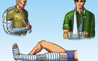 Как наложить шину при переломе, простые правила