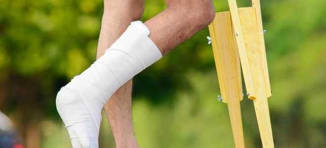 Сколько носить гипс при переломе лодыжки
