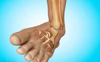 Перелом стопы — признаки травмы, первая помощь, лечение и реабилитация