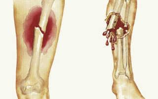 Открытый перелом — признаки, симптомы, лечение