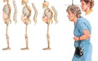 Лечение остеопороз у женщин после 50 лет