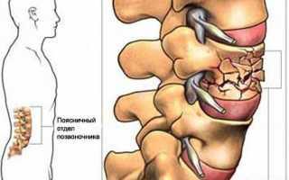 Компрессионный перелом позвоночника поясничного отдела лечение