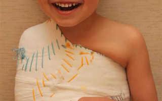 Лечение перелома ключицы у детей
