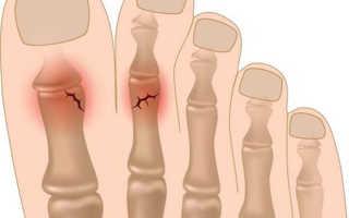 Перелом пальца на ноге: причины, симптомы, лечение, восстановление