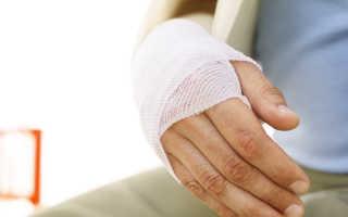 Трещина в кости на руке симптомы