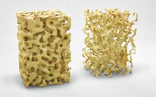 Остеопороз —симптомы, причины, классификация и методы лечения