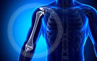 Трещина плечевой кости
