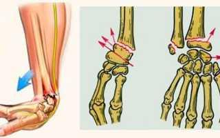 Перелом Коллеса лучевой кости