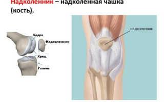 Перелом надколенника – коленной чашечки ноги
