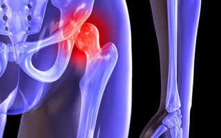 Чрезвертельный перелом бедренной кости — частая травма пожилых людей