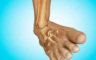Когда можно наступать на ногу после перелома лодыжки