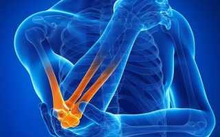 Перелом шиловидного отростка локтевой кости