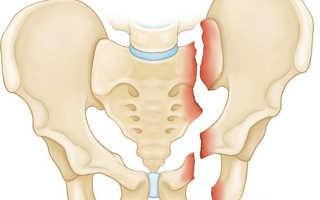Перелом таза, сколько продлится лечение