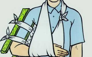 Первая медицинская помощь при закрытом переломе