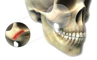 Трещина в челюсти