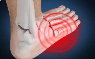 Плюсневая кость — прелом стопы, лечение, реабилитация