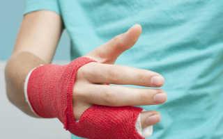 Перелом пальца на руке: симптомы, диагностика, лечение, реабилитация
