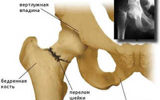 Субкапитальный перелом шейки бедра