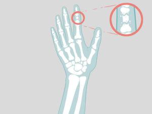 палец на руке