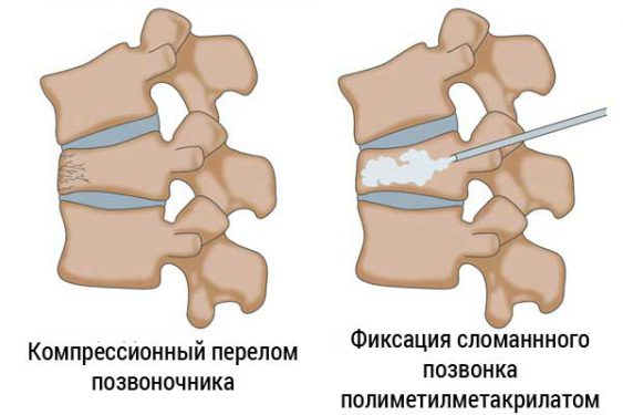 Фиксация перелома грудного отдела позвоночника