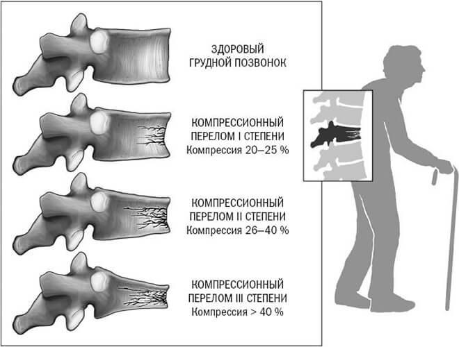 Степени переломов грудного отдела позвоночника