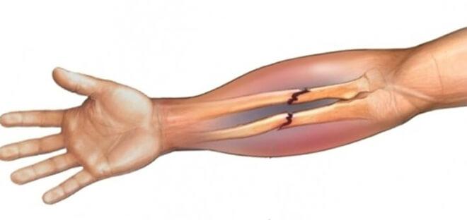 Картинки переломы рук