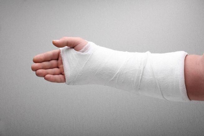 Ограничение движения руки после перелома thumbnail