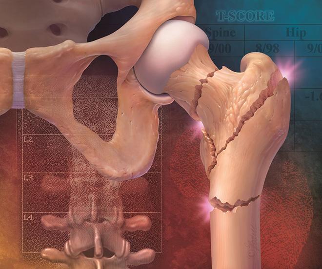 Какие бывают переломы бедра