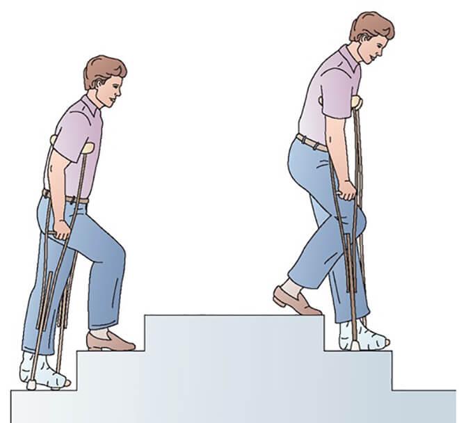 Как поднимать по лестнице на костылях