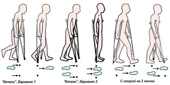Как ходить на костылях