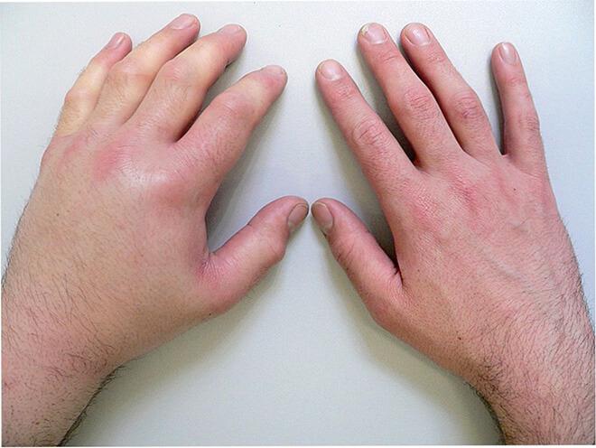 Как распознать ушиб от перелома руки thumbnail