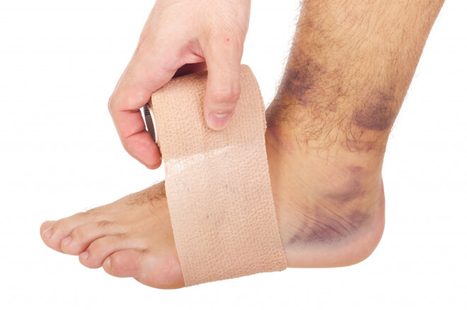 Как можно узнать перелом или ушиб thumbnail