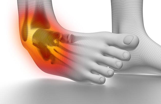 Растяжение ноги (лодыжки)