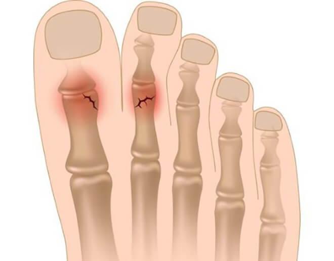 Трещина пальцев ноги