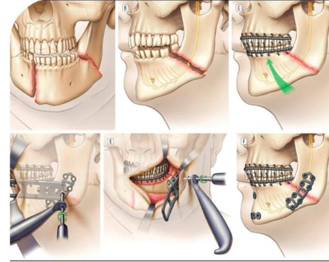 Как выглядит шина при переломе челюсти, посмотри изнутри. Эффективность методики шинирования челюсти при переломе