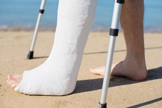 Перелом лучевой кости руки: терапия, срок срастания и реабилитация