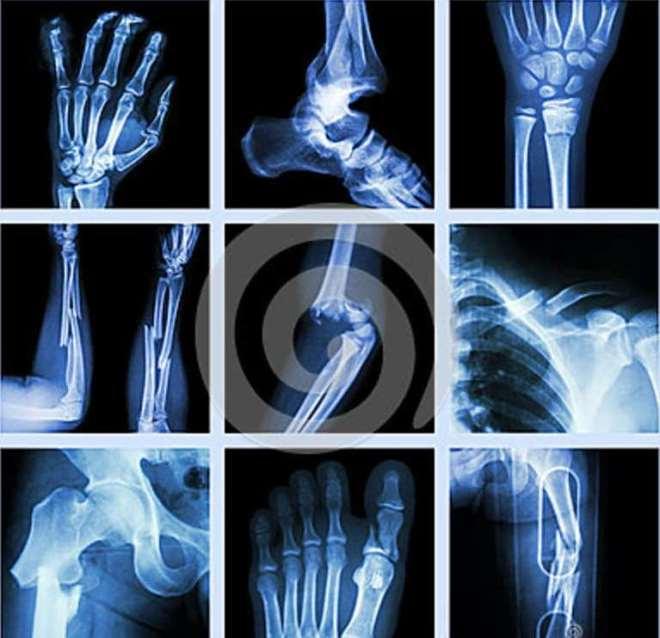переломы рентген