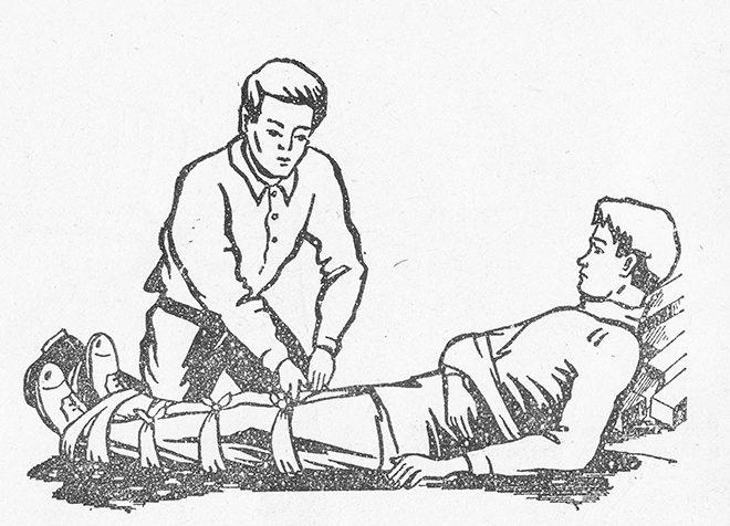обездвиживание при переломе