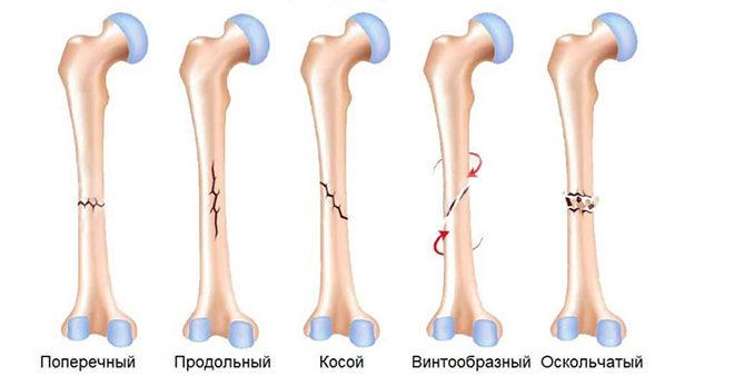 Форма переломоы