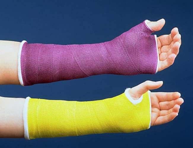 Альтернатива гипсу при переломе руки, ноги