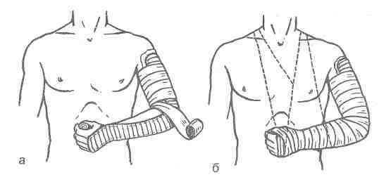 Перелом костей кисти как наложить шину
