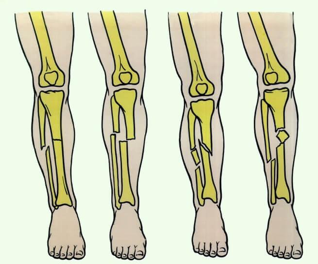 Перелом большеберцовой кости со смещением реабилитация