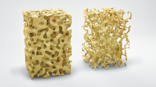 пример остеопороза