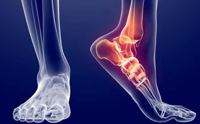 Какое лечение при переломе ноги thumbnail