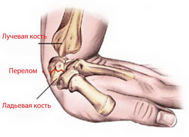Как срастаются кости после перелома на запястье